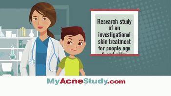 MyAcneStudy.com TV Spot, 'Facial Acne Research Study'