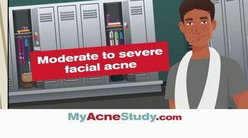 MyAcneStudy.com TV Spot, 'Facial Acne Research Study' - Thumbnail 3