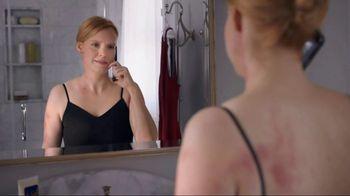 Sanofi Genzyme & Regeneron TV Spot, 'Eczema Exposed'
