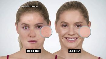 Blackhead Vac TV Spot, 'Cleaner and Healthier Pores' - Thumbnail 4