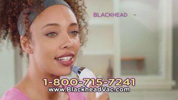 Blackhead Vac TV Spot, 'Cleaner and Healthier Pores' - Thumbnail 6