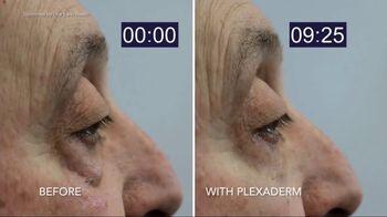 Plexaderm Skincare TV Spot, 'Social Media' - Thumbnail 2