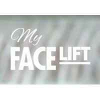My FaceLift